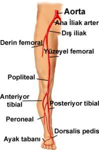 Bacakların Damar Tıkanıklığı Hastalığı Nedir? Nasıl Tedavi Edilir?