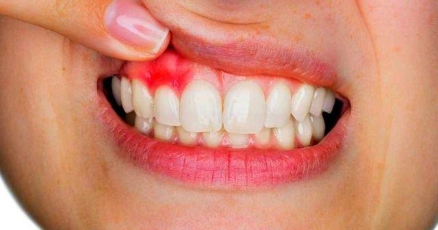 Diş Eti İltihabı Nedir? Diş Eti İltihabının Bitkilerle Tedavisi